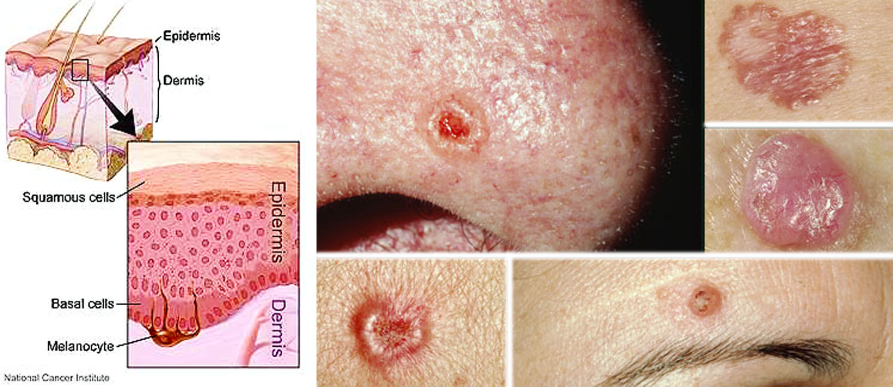 Skin Cancer (Nonmelanoma Skin Cancer or Keratinocyte Cancer)