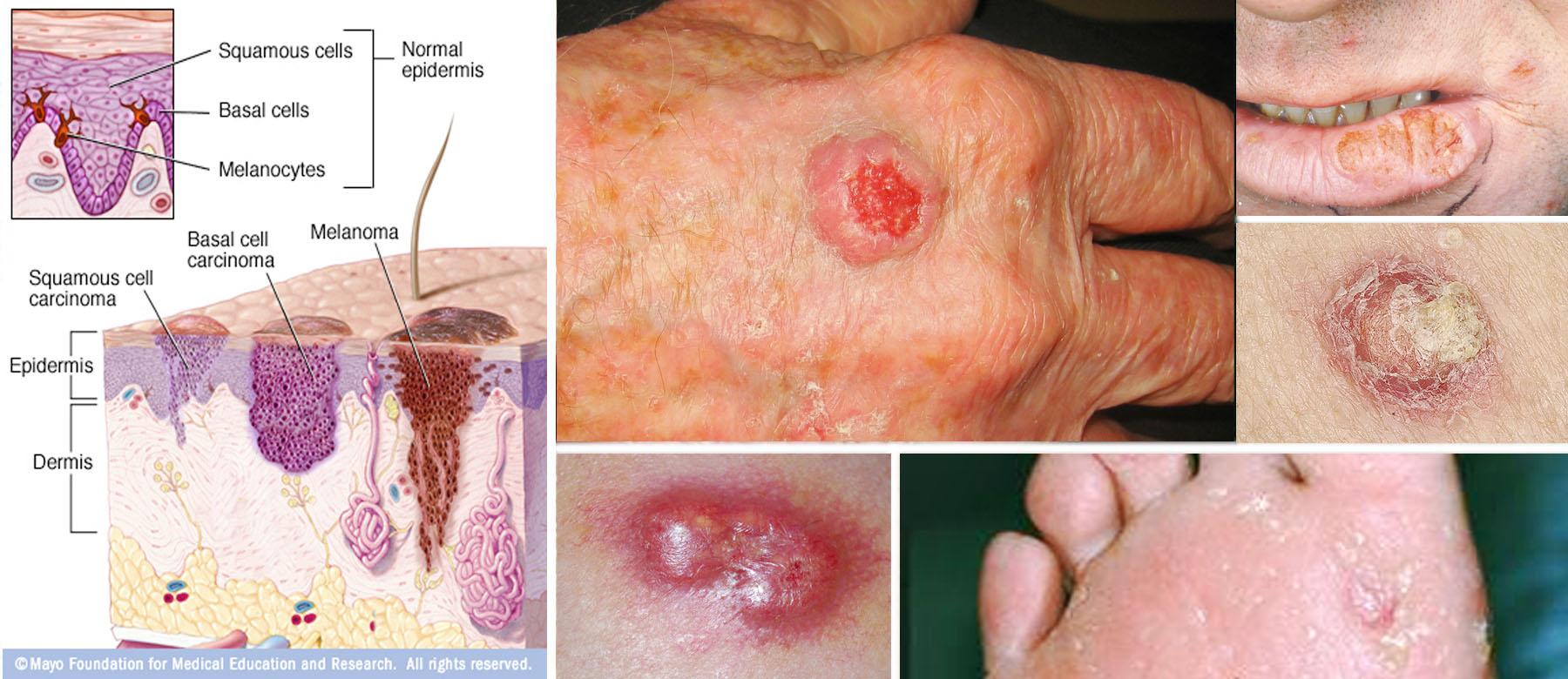 Skin Cancer Squamous Cell Carcinoma P R E V I S E